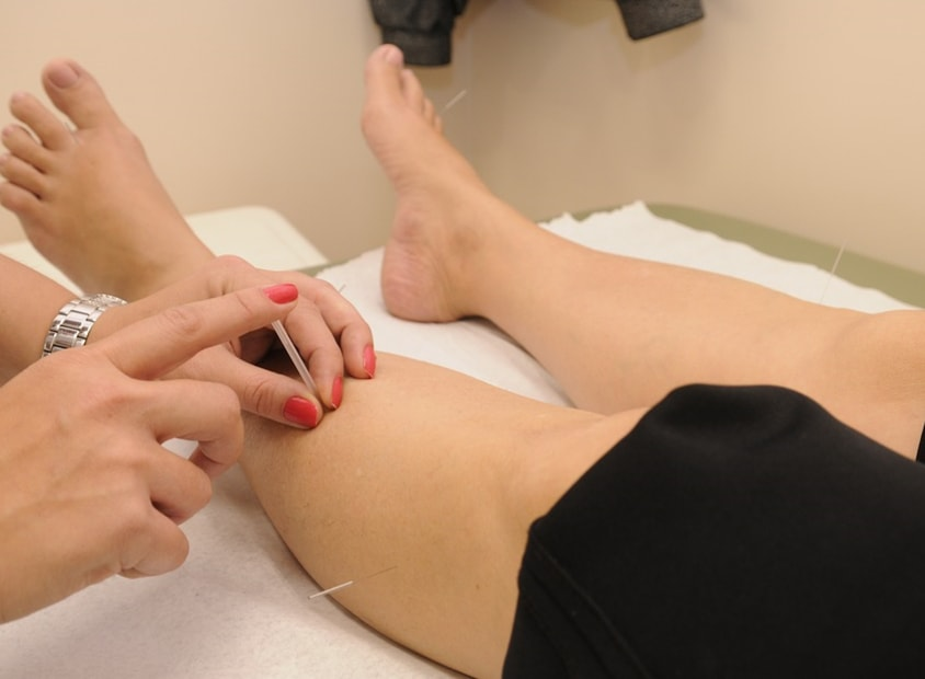 Acupuncture for Fibromyalgia: Can It Bring Relief?