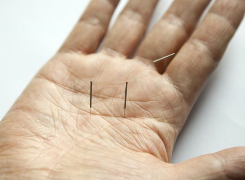 Arthritis Treated With Acupuncture